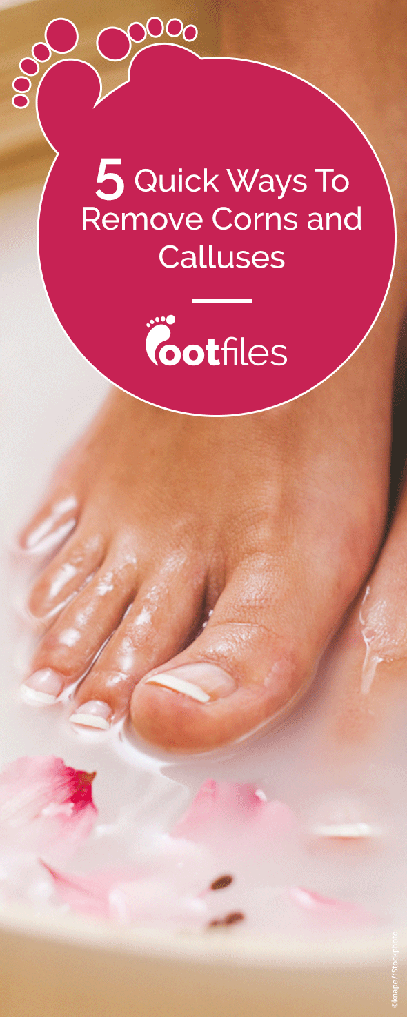 Treat corns and calluses too tough for foot cream with these podiatrist approved callus remedies: apple cider vinegar, aspirin, glycerin and more