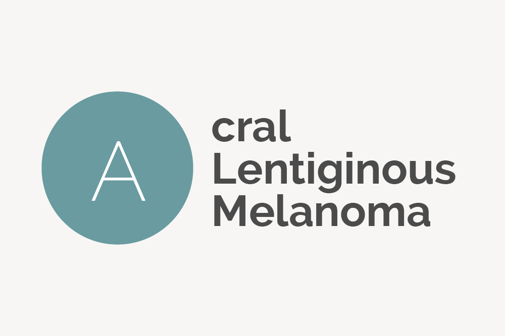 Acral Lentiginous Melanoma Definition