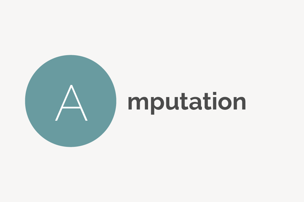 Amputation Definition