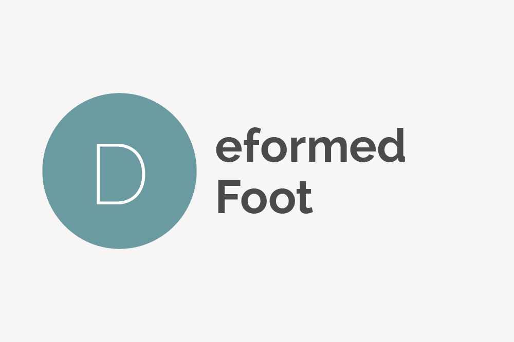 Deformed Foot Definition