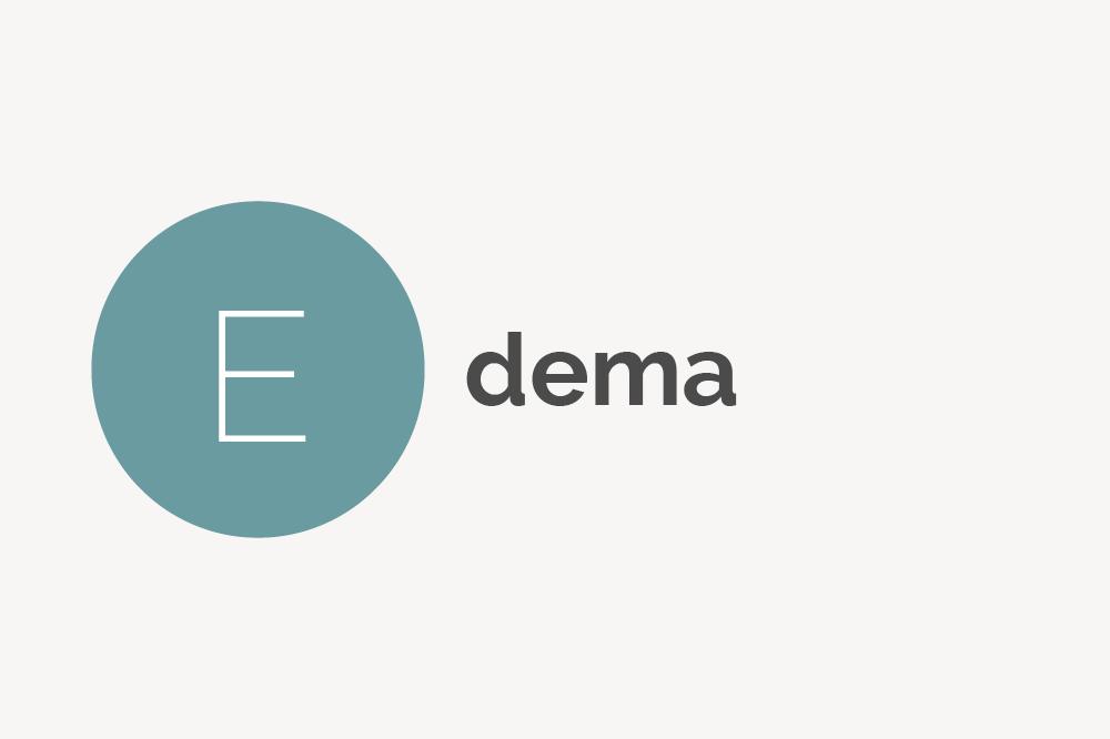 Edema Definition