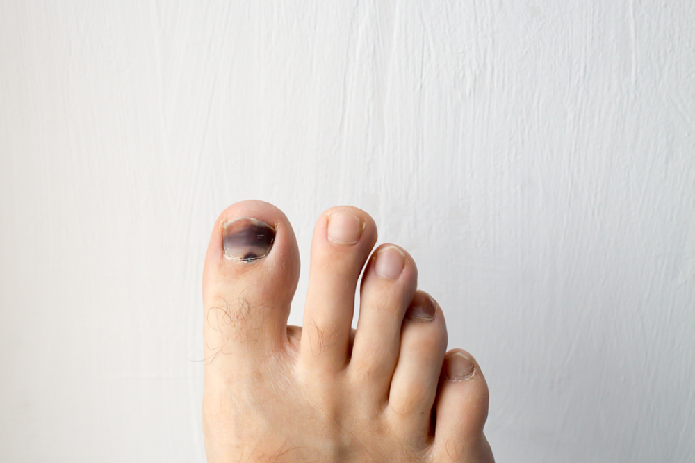 Black Toenail Causes Treatment Grow Out Facts