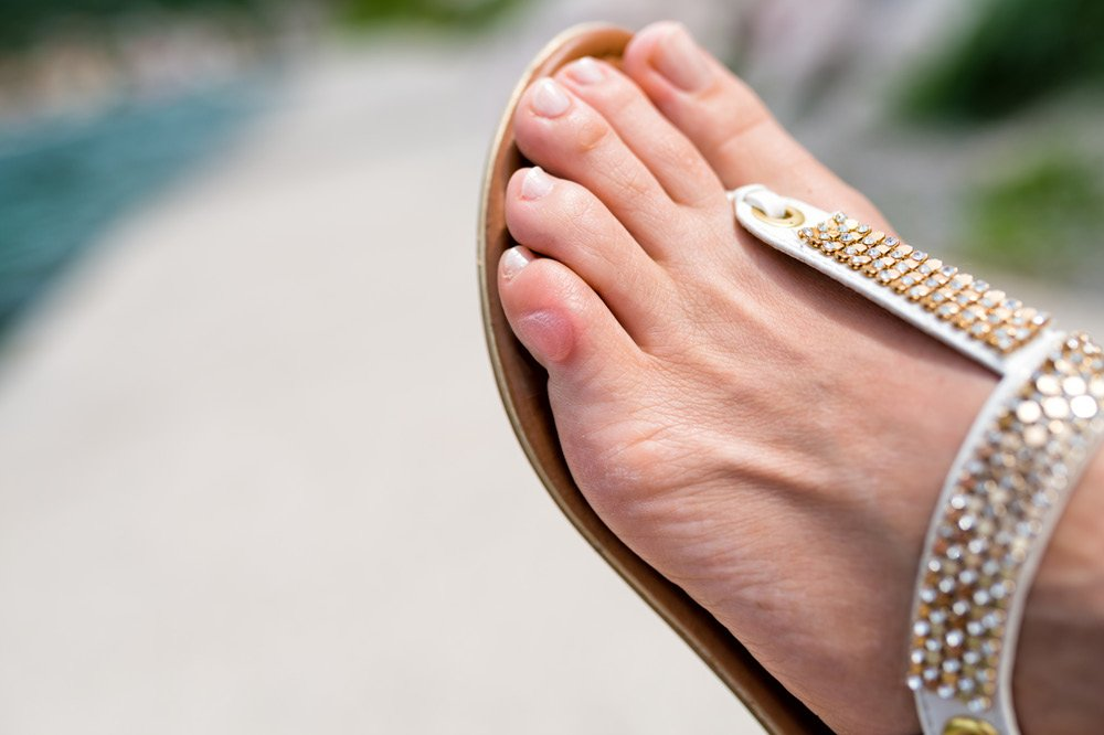 How To Prevent Blisters On Feet Footfiles