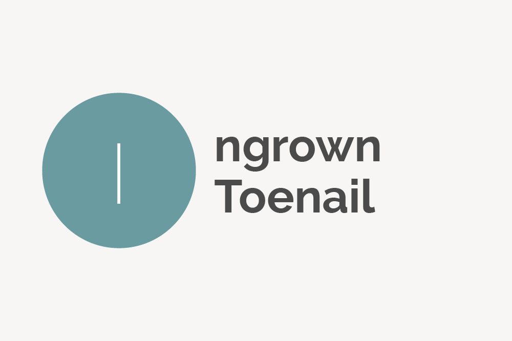 Ingrown Toenail Definition