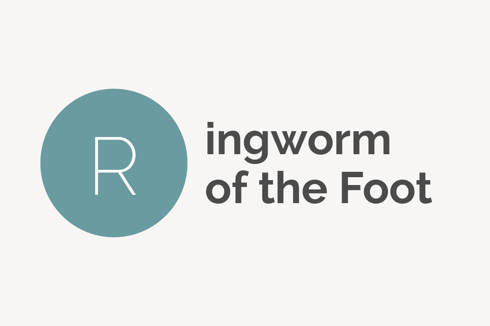 Ringworm of the Foot Definition