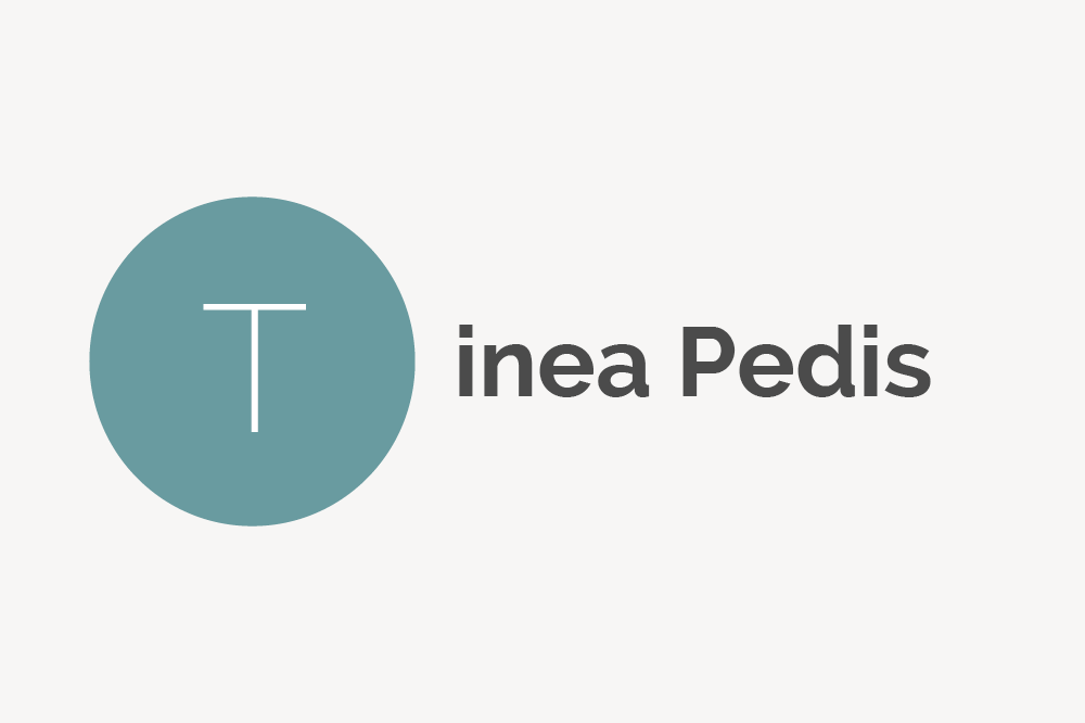 Tinea Pedis Definition